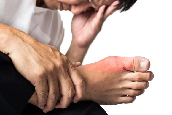 Treatment Options for Gout in Sugar Land